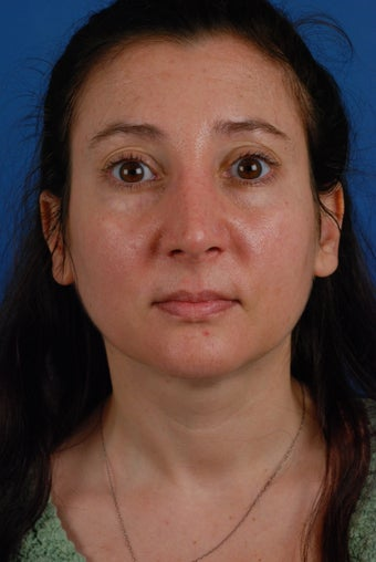 Revision rhinoplasty patient after 2 prior rhinoplasties after 828357