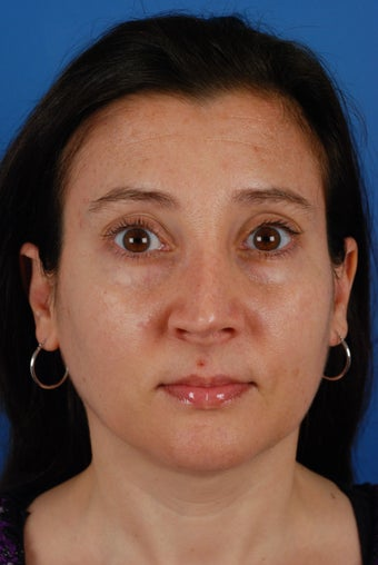 Revision rhinoplasty patient after 2 prior rhinoplasties before 828357