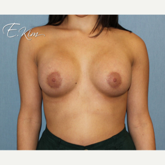 25-34 year old woman treated with Breast Lift with Implants after 3663403