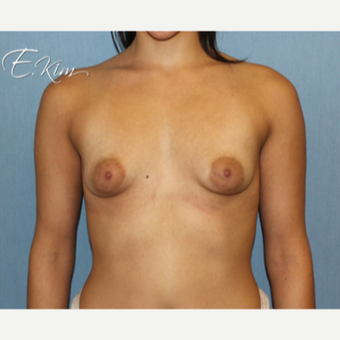 25-34 year old woman treated with Breast Lift with Implants before 3663403
