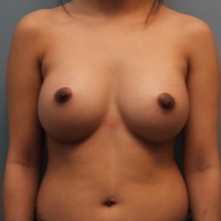 27 year old breast augmentation with 325 cc silicone implants after 3380049