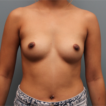 27 year old breast augmentation with 325 cc silicone implants before 3380049