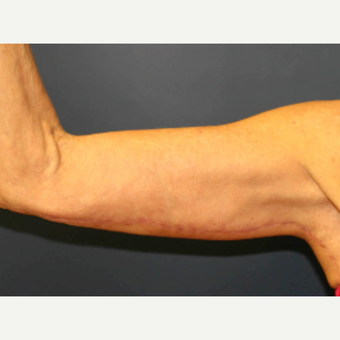 45-54 year old woman treated with Arm Lift after 3820308