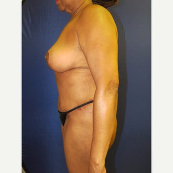 55-64 year old woman treated with Mommy Makeover after 3136056