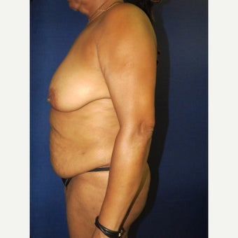55-64 year old woman treated with Mommy Makeover before 3136056