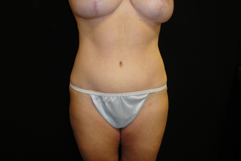 35-44 year old woman treated with Tummy Tuck after 3823376