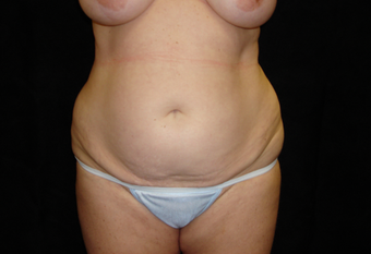 35-44 year old woman treated with Tummy Tuck before 3823376