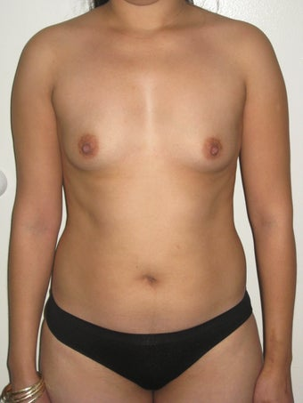 Breast augmentation with liposculpture