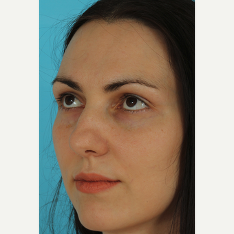 25-34 year old woman treated with Revision Rhinoplasty before 3630125