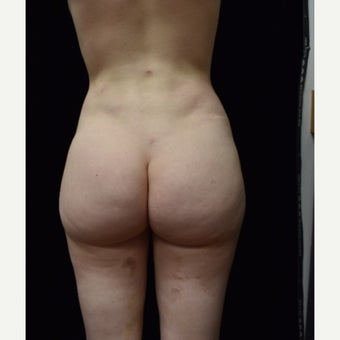 18-24 year old woman treated with Brazilian Butt Lift Revision after 2548258