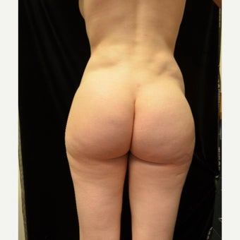 18-24 year old woman treated with Brazilian Butt Lift Revision before 2548258