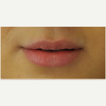 25-34 year old woman treated with Juvederm before 3300586