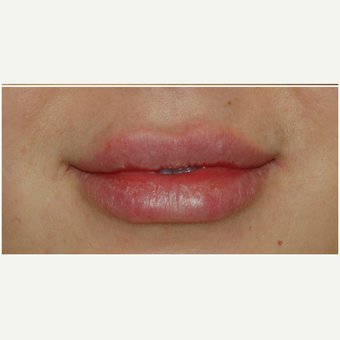 25-34 year old woman treated with Juvederm after 3300586
