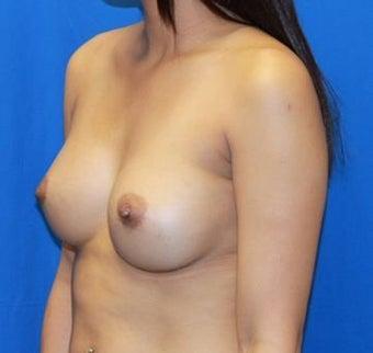 Breast Augmentation 966278