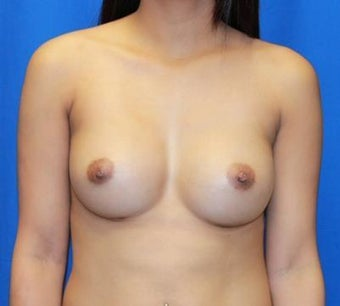 Breast Augmentation after 966278