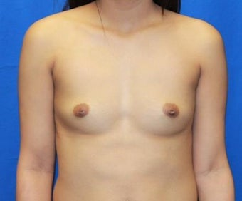 Breast Augmentation before 966278