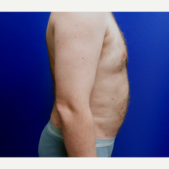 35-44 year old man treated with Liposuction after 3366210