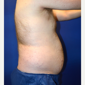 35-44 year old man treated with Liposuction before 3366210