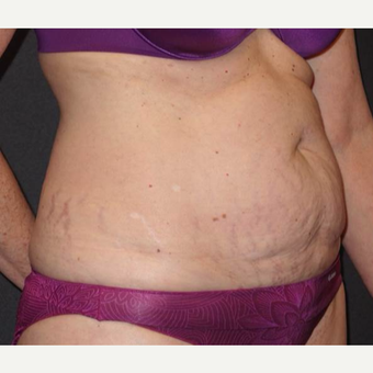 45-54 year old woman treated with Tummy Tuck before 3458175