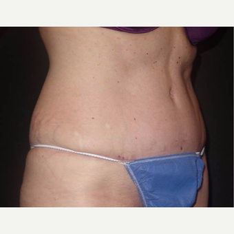 45-54 year old woman treated with Tummy Tuck after 3458175