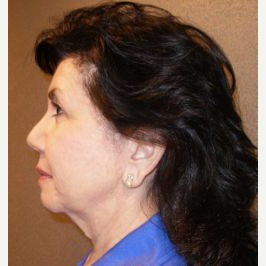 55-64 year old woman treated with Facelift before 3109337