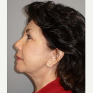 55-64 year old woman treated with Facelift after 3109337