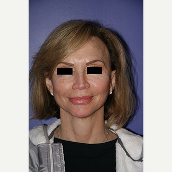 62 year old woman treated with Facelift after 3710684