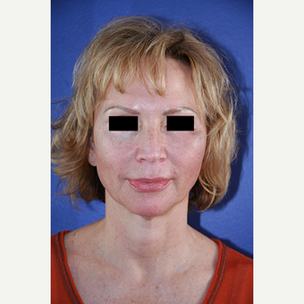 62 year old woman treated with Facelift before 3710684