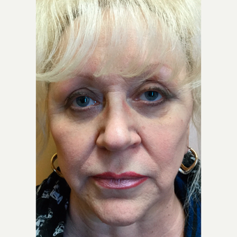 55-64 year old woman treated with Liquid Facelift (Voluma, Juvederm, Botox)