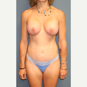 35-44 year old woman treated with Breast Lift with Implants after 3454462