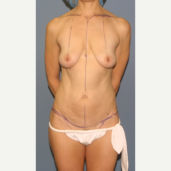 35-44 year old woman treated with Breast Lift with Implants before 3454462