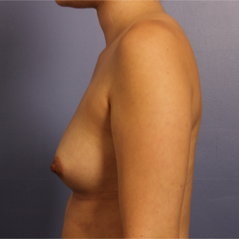Breast Augmentation before 3657276