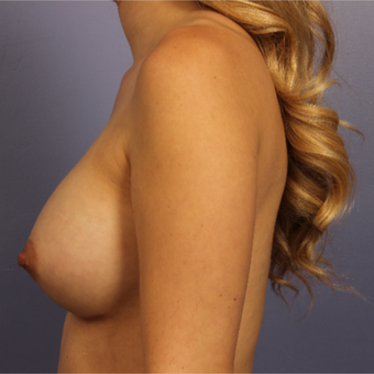 Breast Augmentation after 3657276