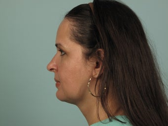 Orthognathic Surgery after 1433342