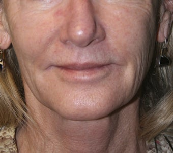 61 Year Old Female treated for wrinkles and spots around mouth before 1260095