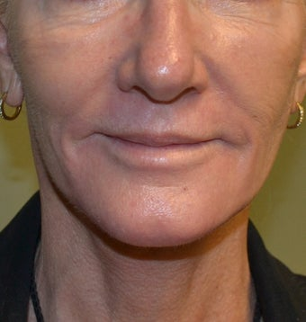 61 Year Old Female treated for wrinkles and spots around mouth after 1260095