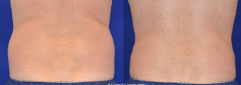 CoolSculpting Love Handles before 1247614