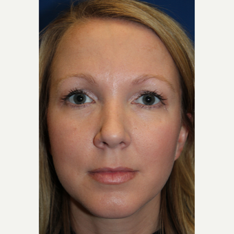 25-34 year old woman treated with Rhinoplasty after 3617562