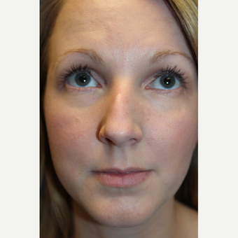 25-34 year old woman treated with Rhinoplasty before 3617562
