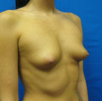 Breast Augmentation, Breast Implants before 1165862