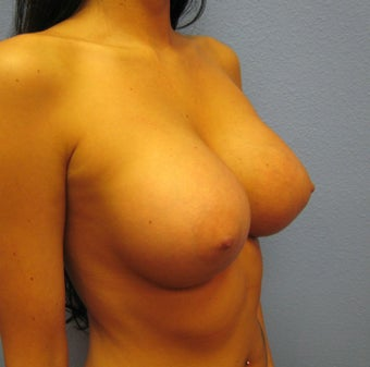 Breast Augmentation, Breast Implants after 1165862