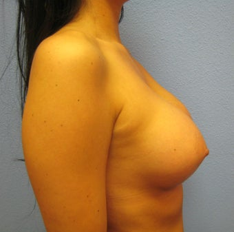 Breast Augmentation, Breast Implants 1165862