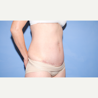 35-44 year old woman treated with Tummy Tuck after 3763398