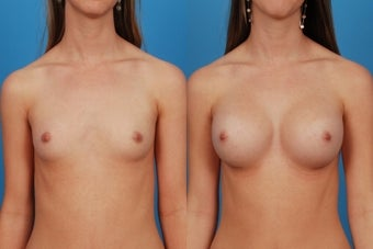 Breast Augmentation: 20-Year-Old Female before 1050797