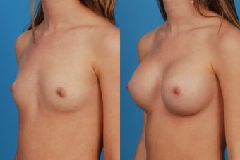 Breast Augmentation: 20-Year-Old Female after 1050797