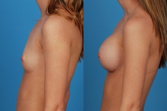 Breast Augmentation: 20-Year-Old Female 1050797