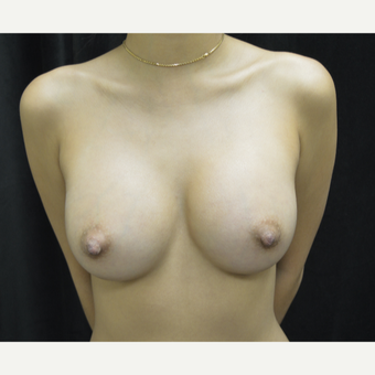 18-24 year old woman treated with Breast Implants after 3423902
