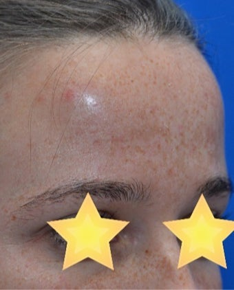 25-34 year old woman treated with Age Spots Treatment before 3141159