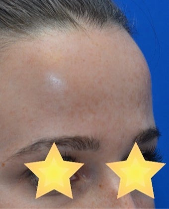 25-34 year old woman treated with Age Spots Treatment after 3141159