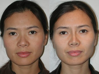 Asian Rhinoplasty before 922060